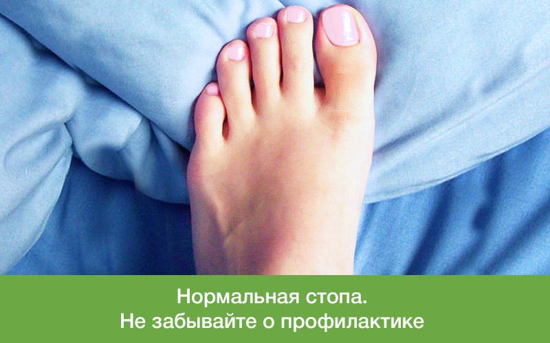 Причины почему болит косточка на ноге