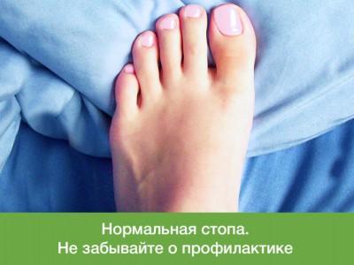 Оперативное и консервативное лечение косточки большого пальца стопы