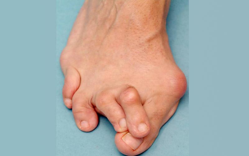 Какие существуют способы удаления косточки на ноге